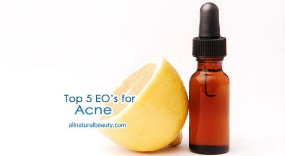 5 Top Essential Oils for Acne Care